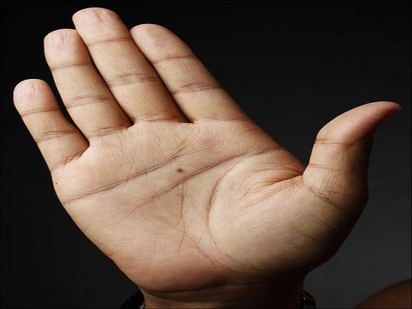 vị trí nốt ruồi ở lòng bàn tay